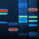 Plasmid isolation from gram positive bacteria - last post by 2xzwei